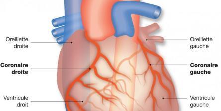 Qu'est-ce qu'un infarctus du myocarde ?
