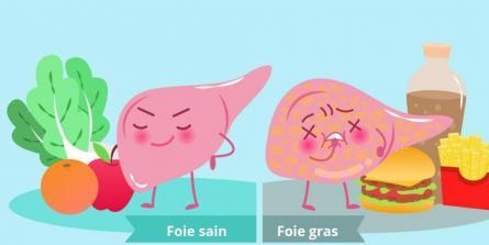 NAFLD, NASH : ce qu'il faut savoir sur la «maladie du foie gras»
