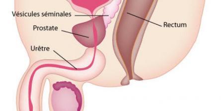 Cancer de la prostate: pourquoi il est particulier