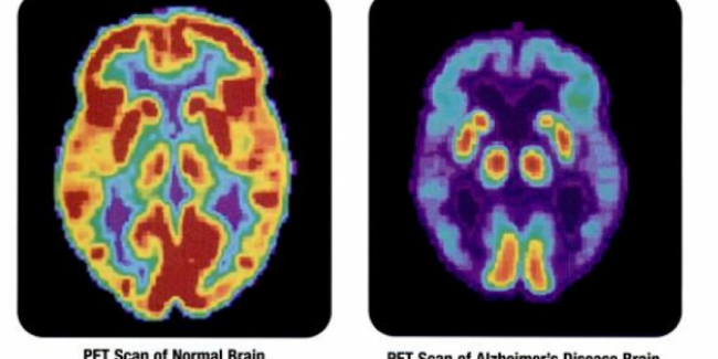 Maladie d'Alzheimer : causes et symptômes
